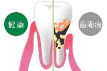 健康な歯と歯周病の歯