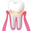 歯周病p1