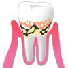 歯周病p2