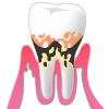 歯周病p3
