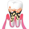 歯周病p4